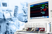 Icu med ekg-monitor — Stockfoto