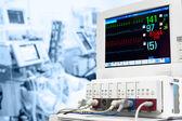 Unidad de cuidados intensivos con monitor de ecg — Foto de Stock