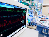 Terapia intensiva pediatrica con monitor ecg — Foto Stock