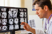 Doctor examining an MRI scan of the Brain — Stock Photo