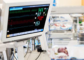 Patients monitor in neonatal ICU — Stock Photo