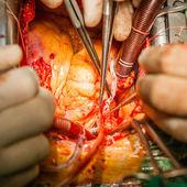 Surgery. — Stock Photo