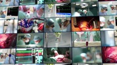 Medical montage. Surgery — 图库视频影像