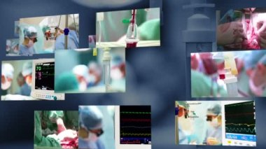 Surgery in operation room — Stockvideo