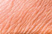 Texture of human skin — Stock Photo