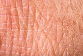 Textura de pele humana — Foto Stock