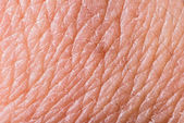 Texture of human skin — Stock Photo