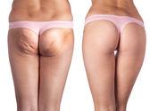 Cellulite ass and beautiful ass. — Stock Photo