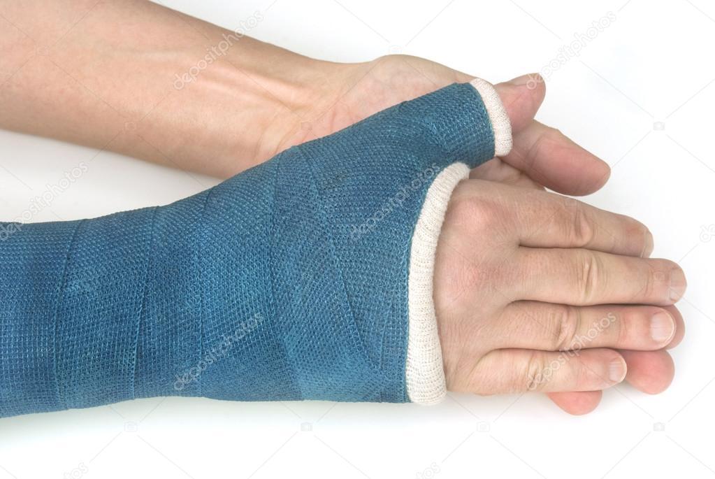 fracture du poignet bras avec une fibre de verre bleu sur fond blanc photographie fenton. Black Bedroom Furniture Sets. Home Design Ideas