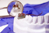 Teeth made of plaster — Stock Photo