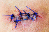 Closeup of a stitched wound — Stock Photo