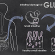 Intestinal Damage of Gluten — Stock Photo #38525725