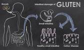 Intestinal Damage of Gluten — Stock Photo