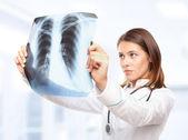 Joven doctora mirando la radiografía de los pulmones — Foto de Stock
