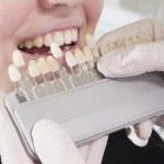 ������, ������: Dentist choose white of teeth