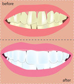 Cosmetic Dentistry — Vettoriale Stock