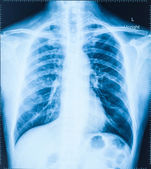 X-Ray Image Of Human Chest for a medical diagnosis — Stock Photo