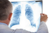 Senior doctor examining a lung radiography — Stock Photo