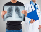 Man holding a radiography of his lungs — Stock Photo