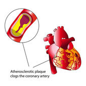 Atherosclerotic plaque — Vector de stock