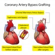 Stock Vector: Coronary Artery Bypass