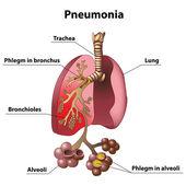 Pneumonia — Stock Vector