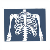 Thorax X-ray picture. — Stock Vector
