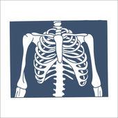 Рентгеновский снимок грудной клетки. — Cтоковый вектор