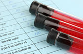 Blood in test tubes and results close up — Stockfoto