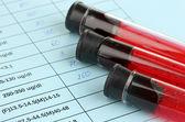 Fechar o sangue em tubos de ensaio e resultados — Foto Stock