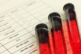 Blood in test tubes and results close up — Stock Photo