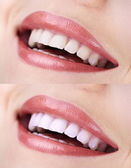 Woman smiling with teeth close-up — Stock Photo
