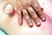Fire cupping treatment to cup sb therapy woman — Stock Photo