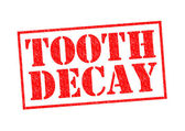 TOOTH DECAY — Stock Photo