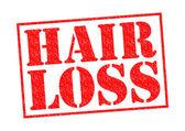 HAIR LOSS — Stock Photo