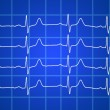 Heart beats electrocardiogram over blue background — Stock Photo