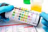 Urine test strips — Stock Photo