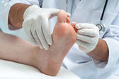 Tinia pedis or Athletes foot — Stock Photo