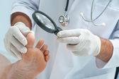 Tinia pedis or Athletes foot — Stock Photo