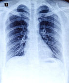 Chest x-ray — Stock Photo