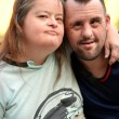 Couple with down syndrome — Stock Photo