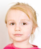 Baby girl with chicken pox rash — Stock Photo