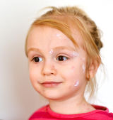 Baby girl with chicken pox rash — Stockfoto