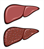 Liver Cirrhosis disease — Stock Vector