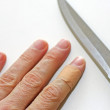 Stock Photo: Hand with finger with band aid and sharp blade of knif