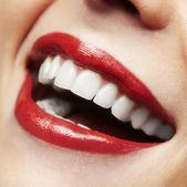 Kobieta uśmiech. wybielanie zębów. opieka stomatologiczna. — Zdjęcie stockowe