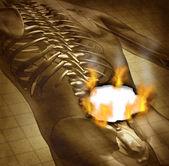 Human Painful Back — Stock Photo