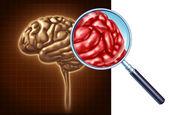 Brain Close Up — Stock Photo
