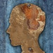 Stock Photo: Brain Disease And Dementia