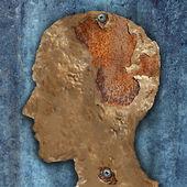 Brain Disease And Dementia — Stock Photo